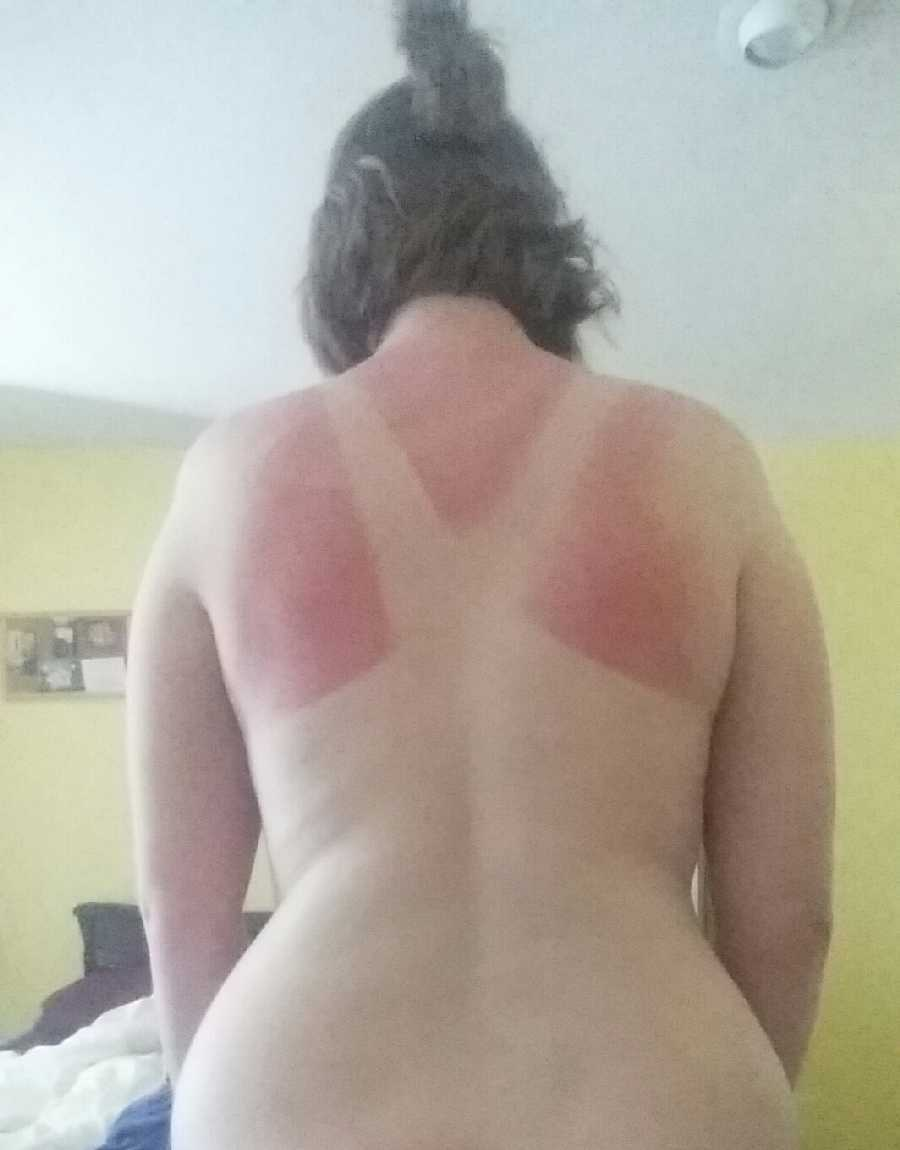 Vacation Sunburn