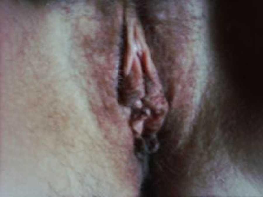 Nip Licker